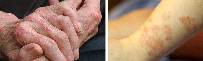 Признаки аллергической реакции на коже
