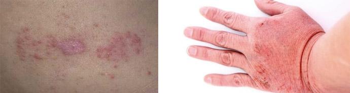 Признаки контактного дерматита