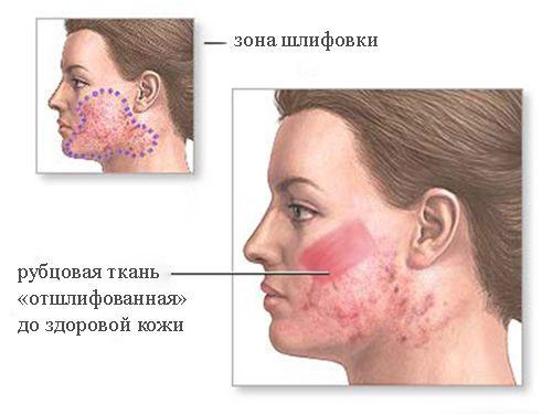 Процедура дермабразия