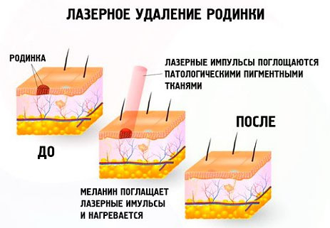 Процедура лазерного удаления невуса