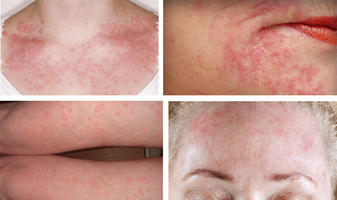 лечение аллергии на коже в домашних условиях