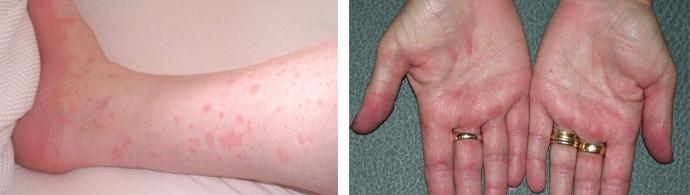 Проявления дерматита