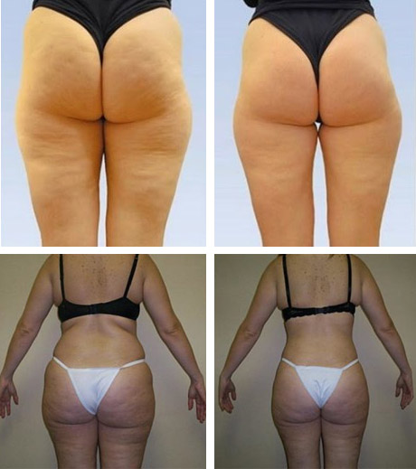 Обертывание для похудения в домашних условиях: отзывы, обзор самых эффективных рецептов
