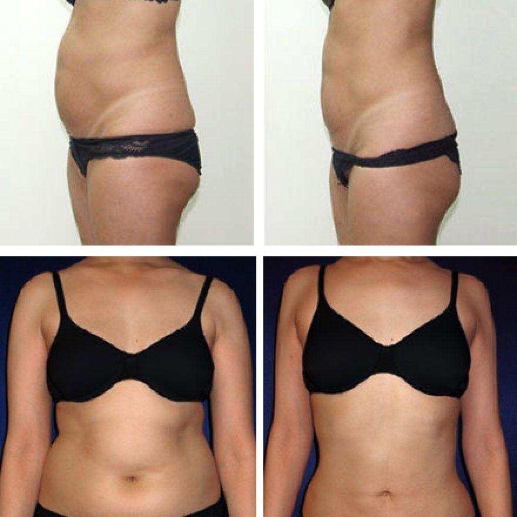 Результат процедур для похудения