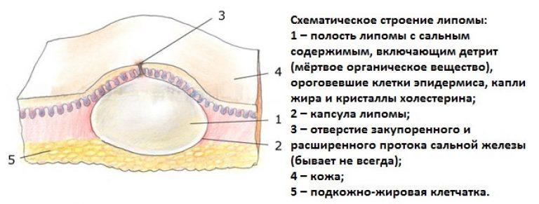 жировая киста на лице фото