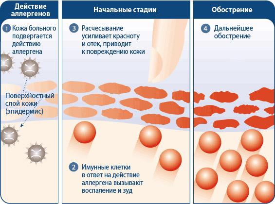 Аллергия на коже красные пятна чешутся лечение