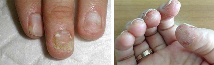 Тяжелая форма аллергии