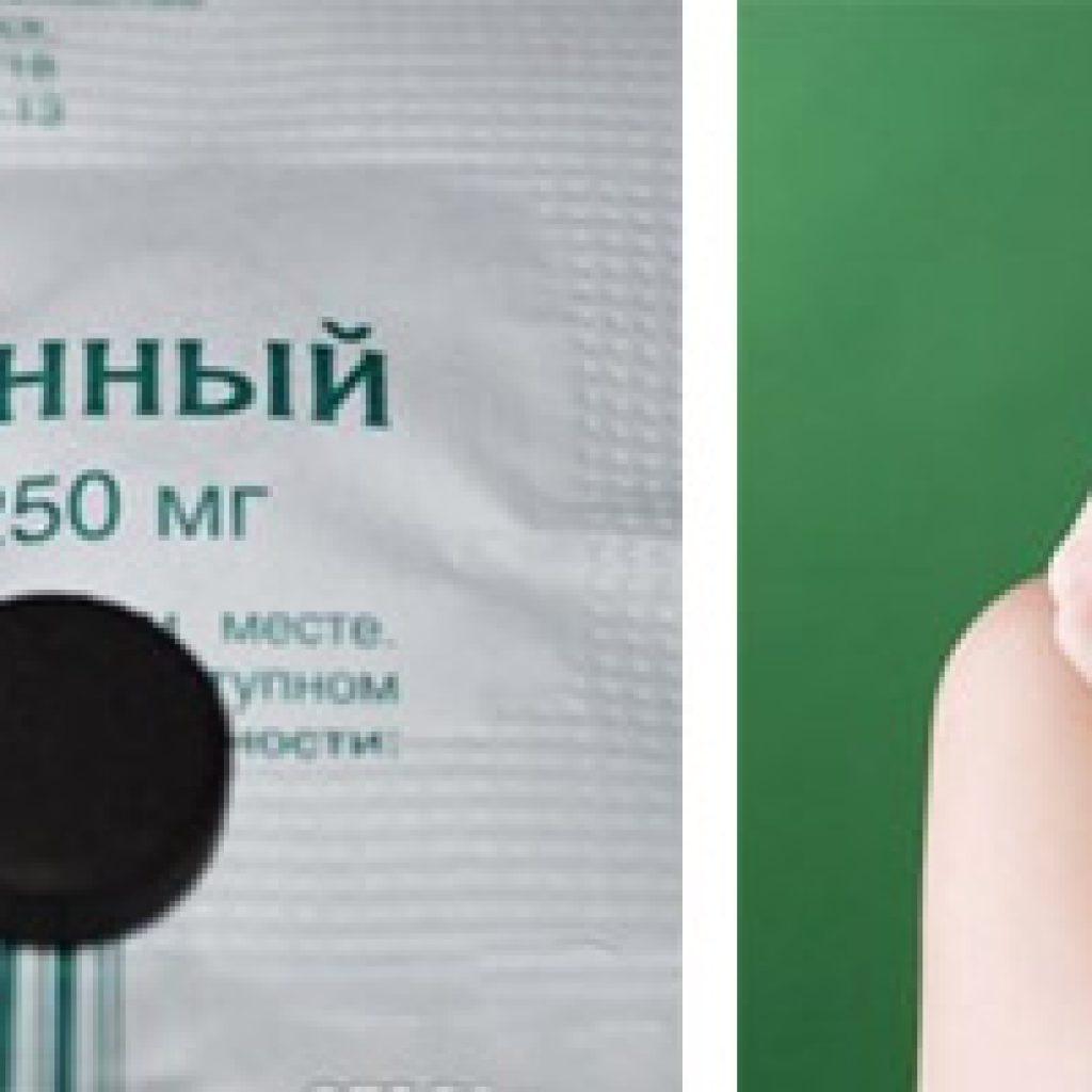Уголь от аллергической реакции