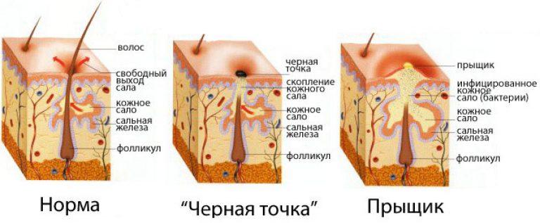 Чем скорректировать форму носа