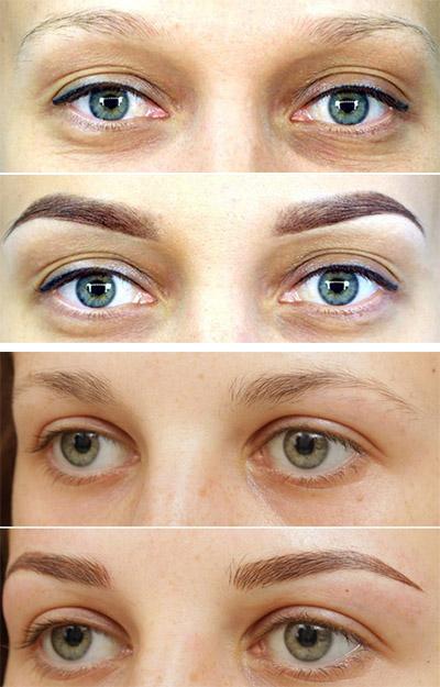 Фото до и после биотатуажа