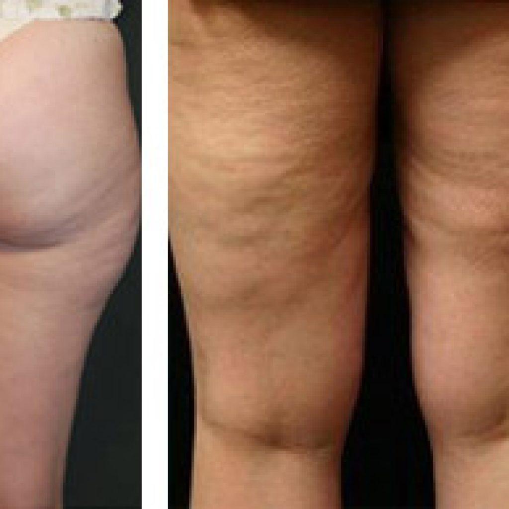 Фото до и после массажа