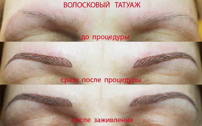 Фото до и после татуажа