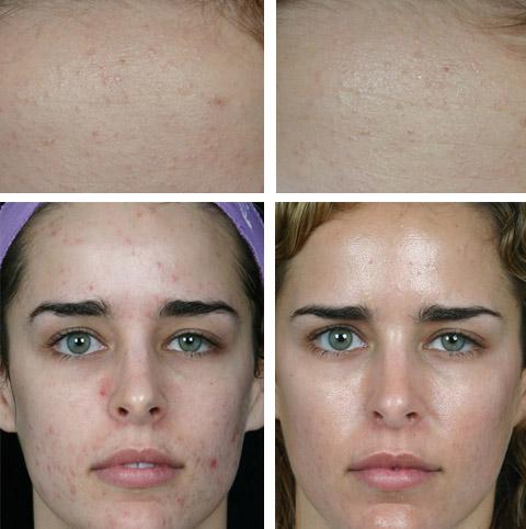 Фото после лечения салициловой кислотой