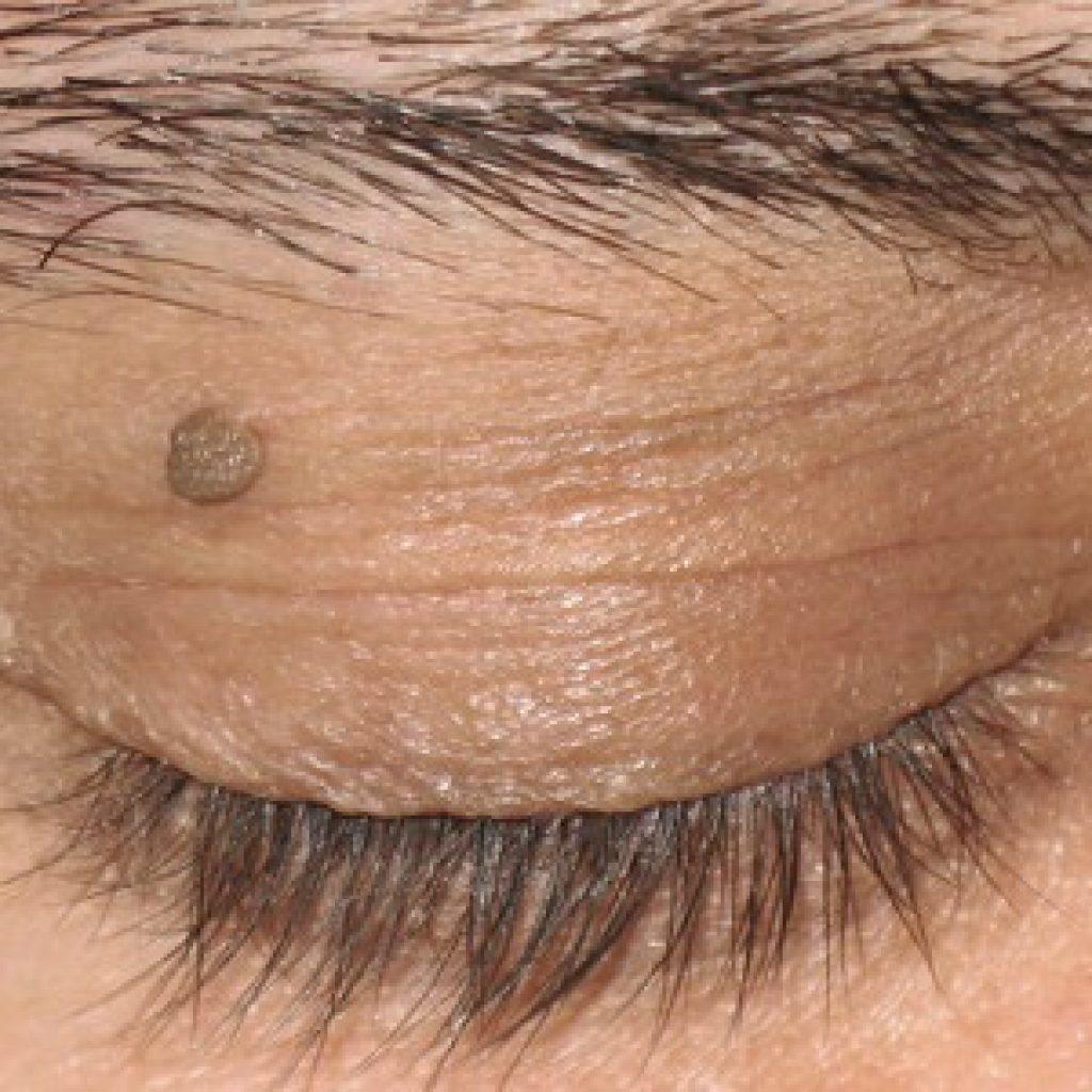 Что делать при появлении папилломы в области глаз