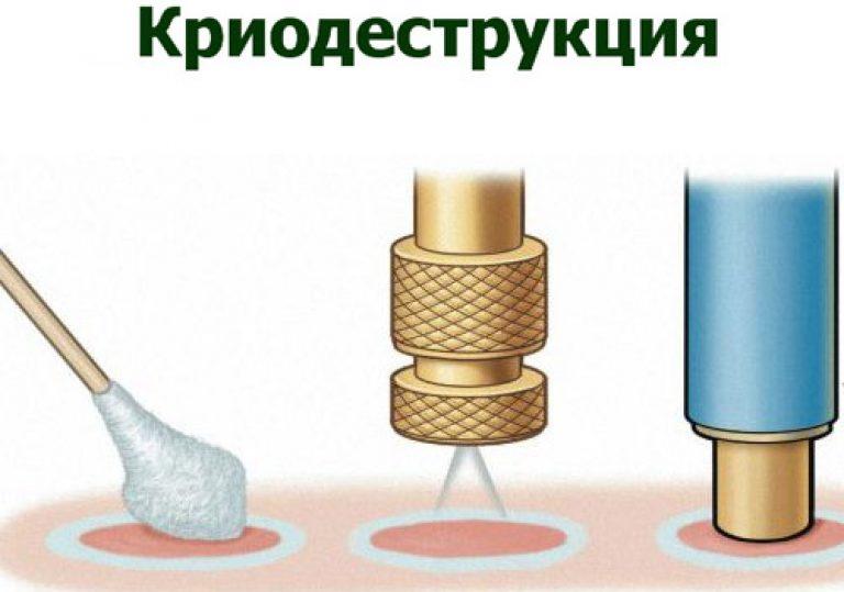 удаление кондилом жидким азотом