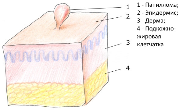 Папилломы на теле причины появления