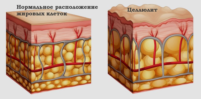 Что такое целлюлит