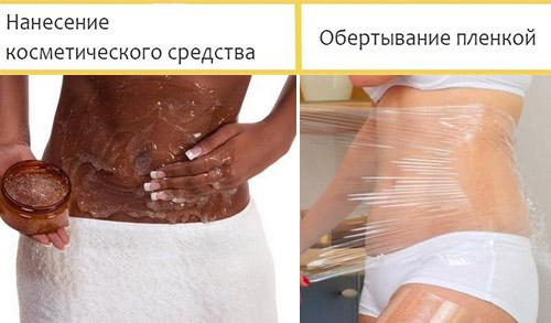 Этапы проведения обертывания