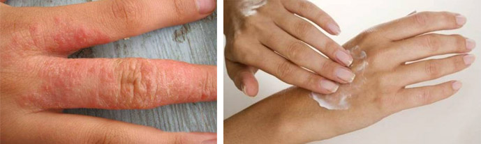 Аллергия в области рук