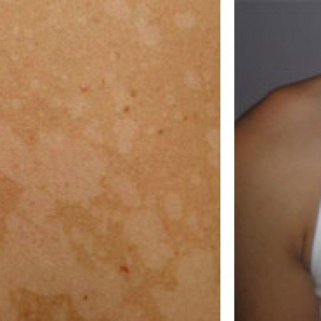 Белые участки на коже