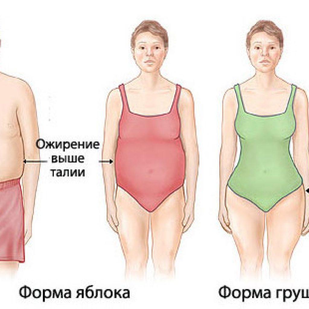 Виды ожирения