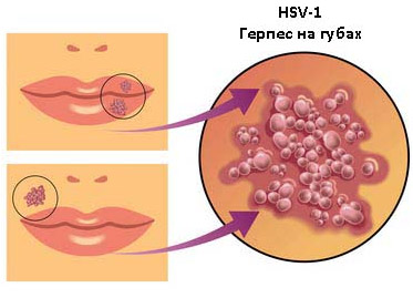 Вирус HSV-1
