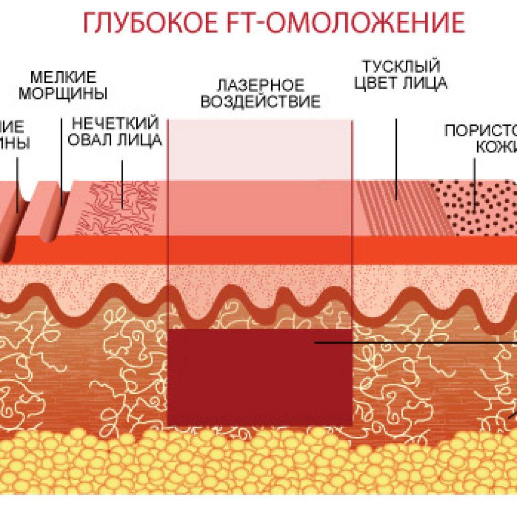 Глубокое FT-омоложение