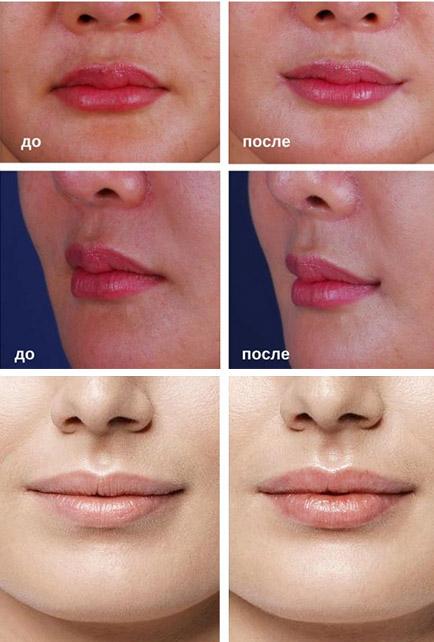 До и после гимнастики для губ