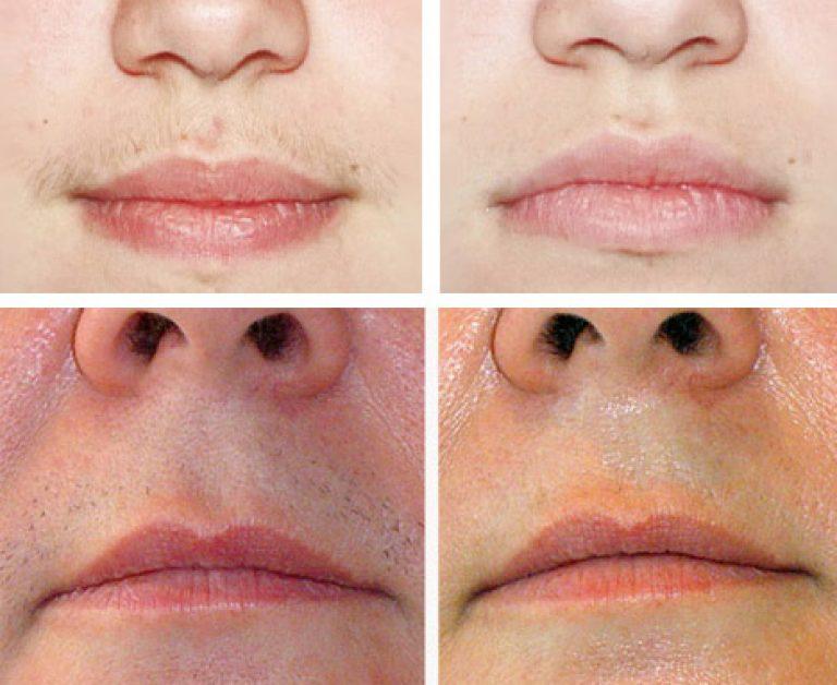 Избавиться от усиков над верхней губой в домашних условиях