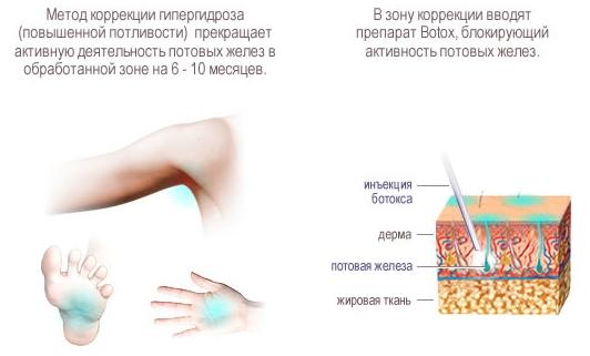 Инъекции Botox