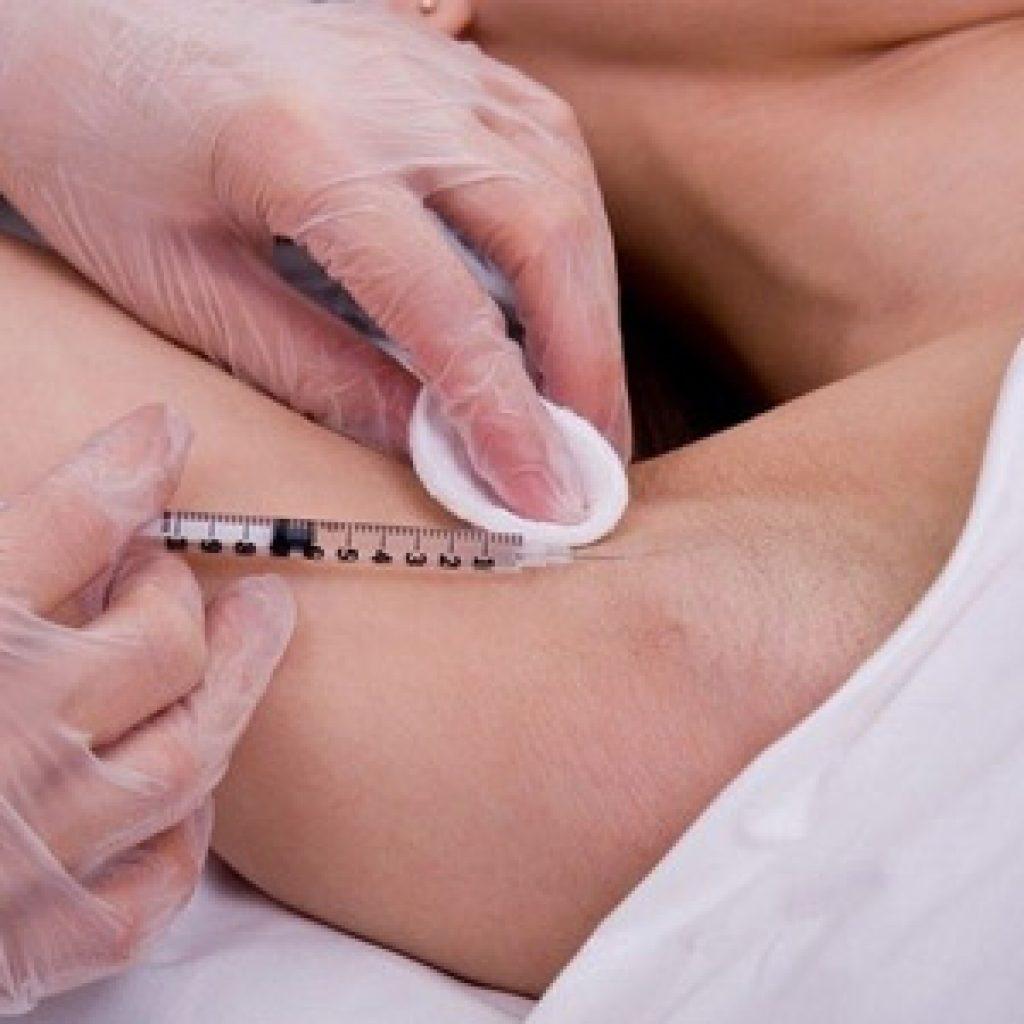 Как лечить гипергидроз с помощью инъекций Ботокса