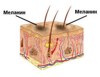 Как образуется пятна на коже