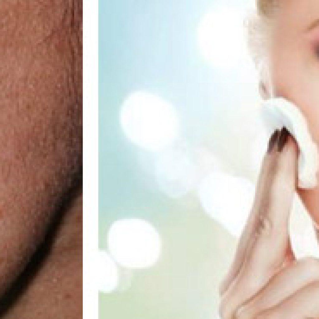 Как осветлить пятна на коже