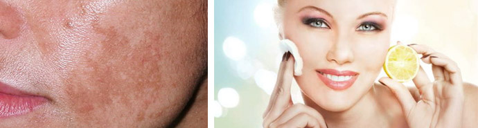 Пигментацию своей кожи