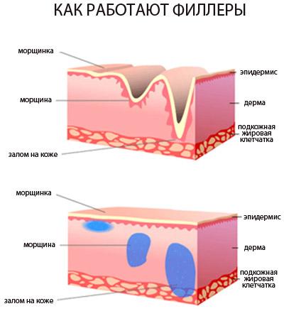 Как работает гиалуроновая кислота