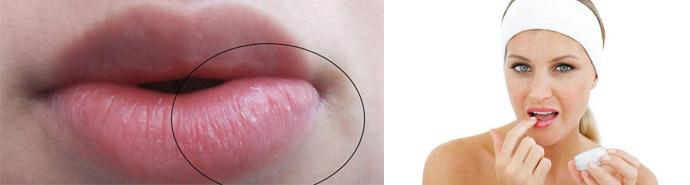 Как снять припухлость губ