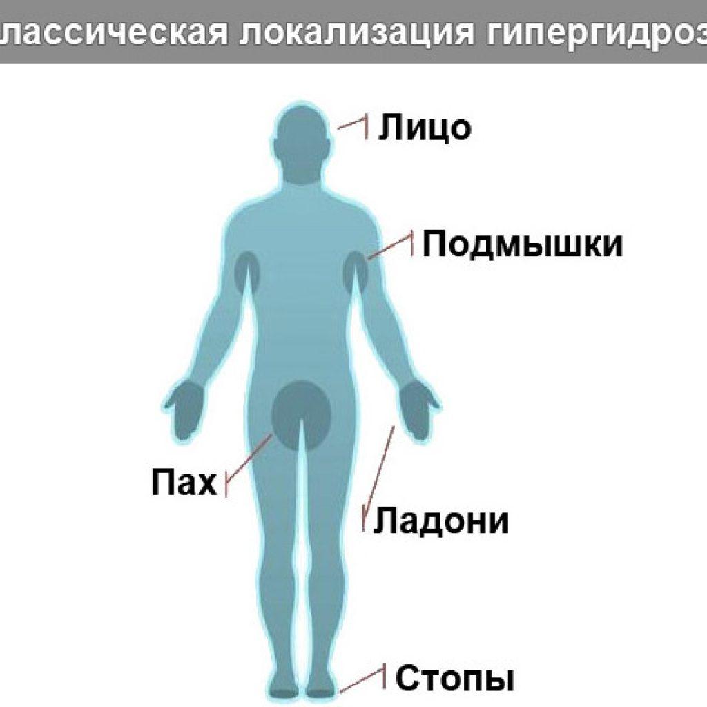Классическая локализация гипергидроза