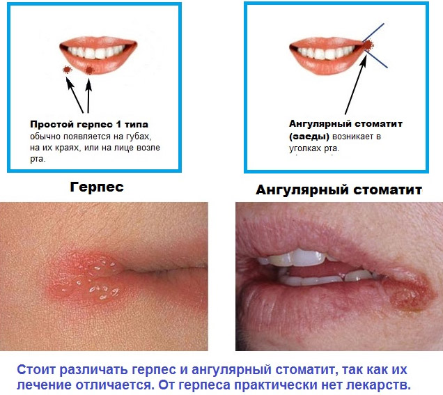 Когда появляются трещины на губах