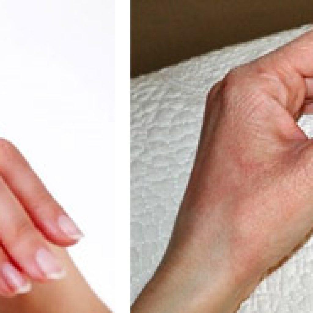Лечение аллергической реакции на холод