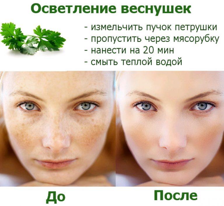Как очистить кожу от веснушек и пятен фото
