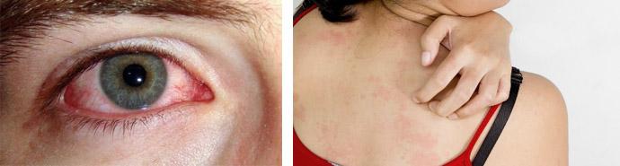 Особенности проявления аллергии