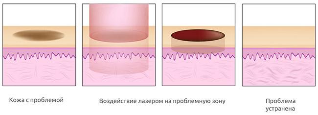 Особенности фотоомоложения кожи