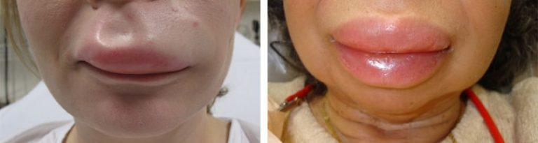 Если у ребенка опухла верхняя губа причина 150