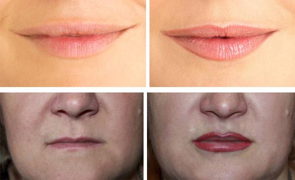 После коррекции губ