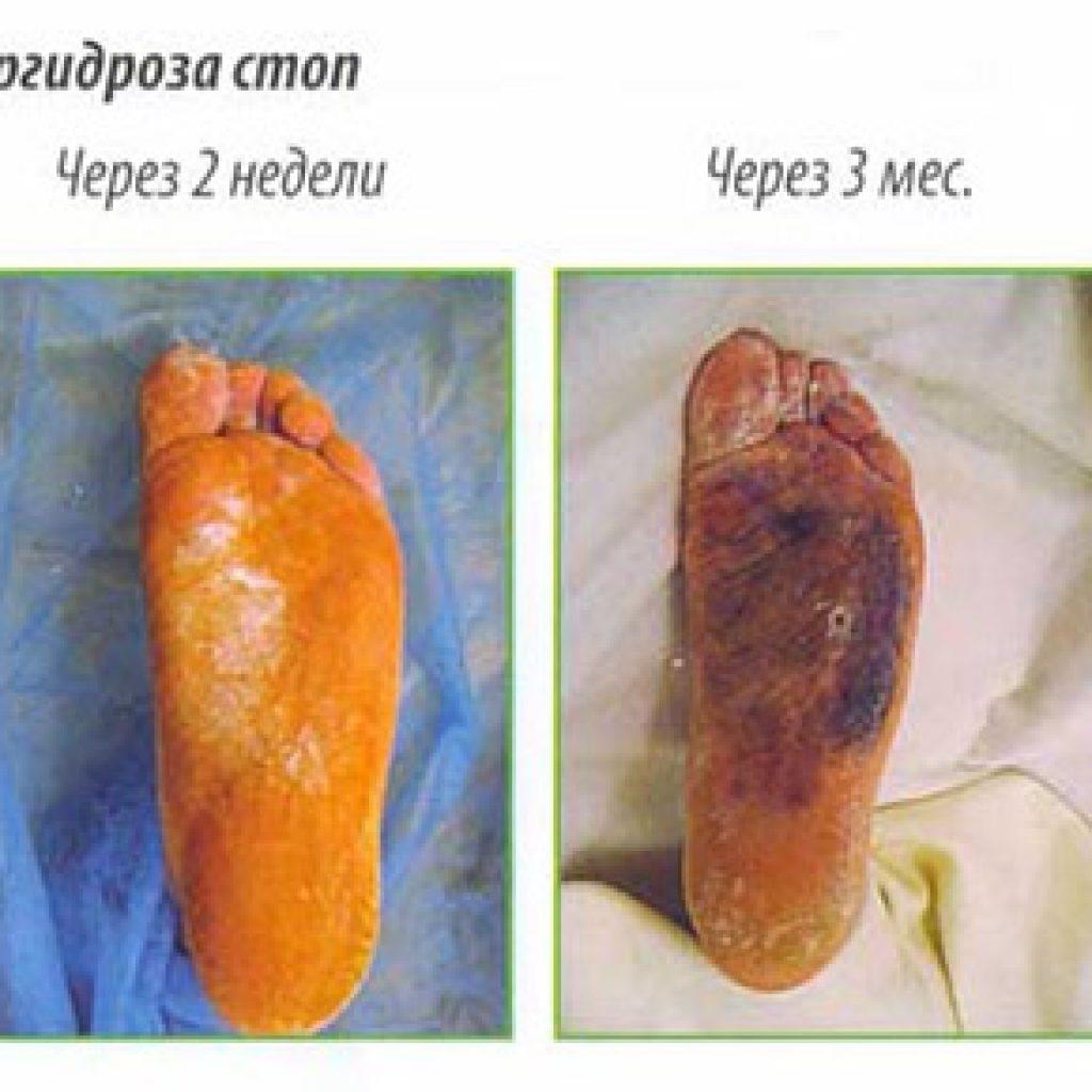 После лечения гипергидроза стоп