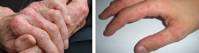 Аллергия на рассаду помидоров сыпь на руках 22