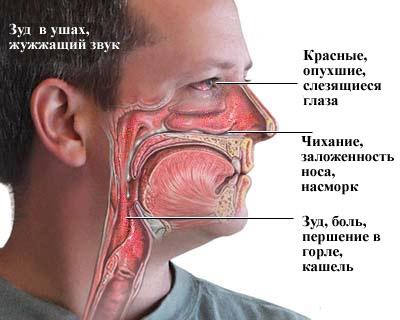 Признаки аллергии у взрослых и лечение