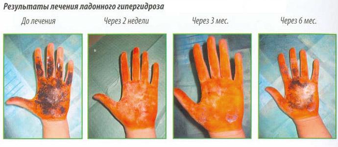 Результат лечения Ботоксом