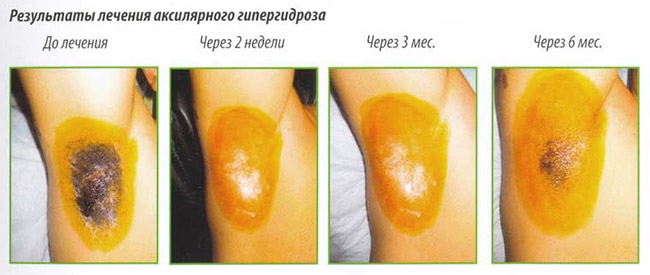 Результат терапии ботулотоксином