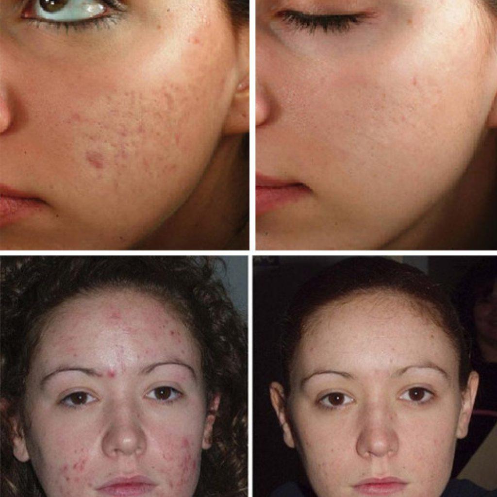 Результат очистки кожи